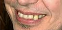 buscemi teeth
