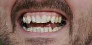 Gervais Teeth