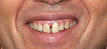 Howard Teeth